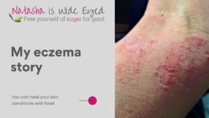 title showing My eczema story and a picture of a previous bad flare up on my arm
